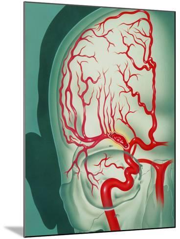 Cerebral Vascular Accident (CVA): Embolism Artwork-John Bavosi-Mounted Photographic Print