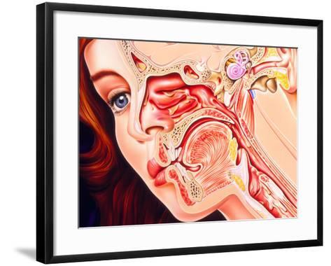 Artwork of Ear, Nose & Throat In a Cold Sufferer-John Bavosi-Framed Art Print