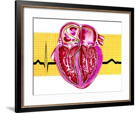 Artwork of Sectioned Heart with Healthy ECG Trace-John Bavosi-Framed Art Print