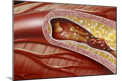 Blocked Coronary Artery, Artwork-John Bavosi-Mounted Photographic Print