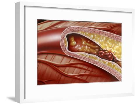 Blocked Coronary Artery, Artwork-John Bavosi-Framed Art Print