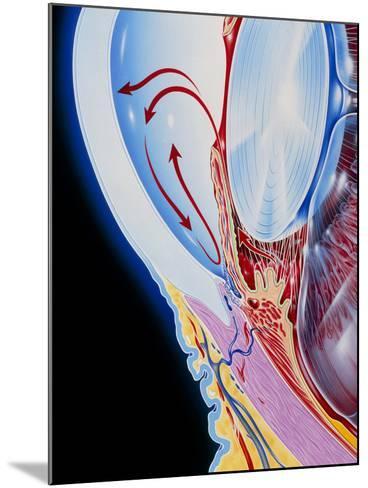 Art of Section Through Human Eye Showing Glaucoma-John Bavosi-Mounted Photographic Print