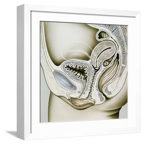 Artwork of Retroflexion of the Uterus-John Bavosi-Framed Art Print