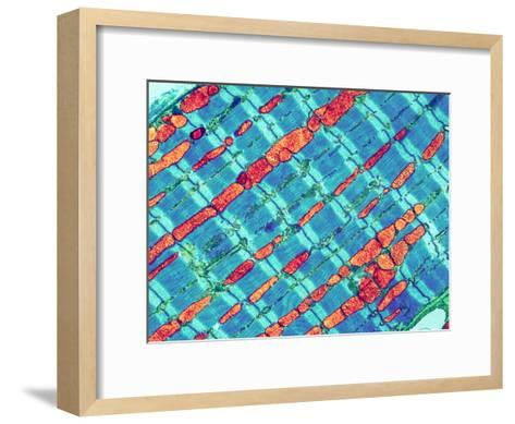 Cardiac Muscle, TEM-Thomas Deerinck-Framed Art Print