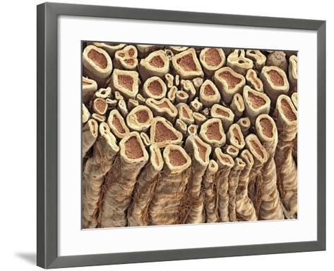Spinal Root Nerves, SEM-Thomas Deerinck-Framed Art Print