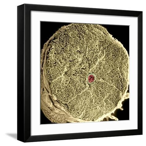 Human Spinal Nerve, SEM-Thomas Deerinck-Framed Art Print