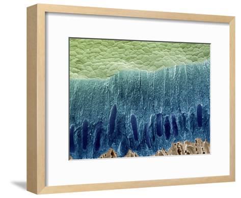 Tooth Enamel Formation, SEM-Steve Gschmeissner-Framed Art Print