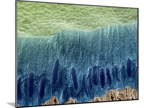 Tooth Enamel Formation, SEM-Steve Gschmeissner-Mounted Photographic Print