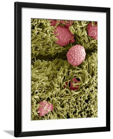 Snake Ciliated Lung Cells And Mucus, SEM-Steve Gschmeissner-Framed Art Print