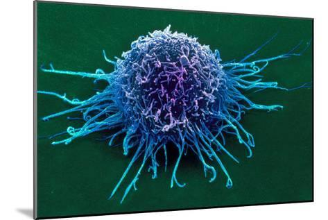 Coloured SEM of a Cancer Cell-Steve Gschmeissner-Mounted Photographic Print