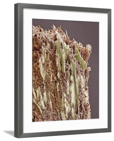 Dental Plaque, SEM-Steve Gschmeissner-Framed Art Print