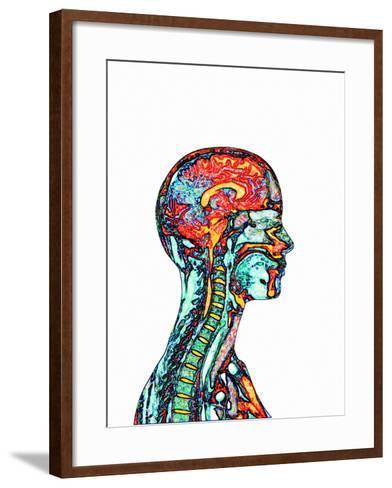 Brain And Spinal Cord, MRI-Mehau Kulyk-Framed Art Print