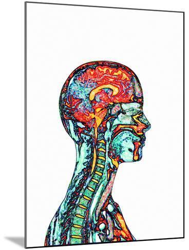 Brain And Spinal Cord, MRI-Mehau Kulyk-Mounted Photographic Print
