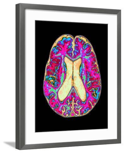 Coloured MRI Scan of Organophosphate Brain Damage-Mehau Kulyk-Framed Art Print