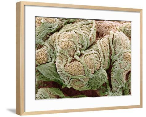 Kidney Glomeruli, SEM-Steve Gschmeissner-Framed Art Print