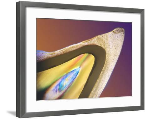 Polarised LM of a Tooth with a Dental Crown-Volker Steger-Framed Art Print
