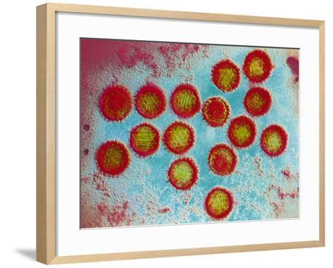 Epstein-Barr Virus Particles--Framed Art Print