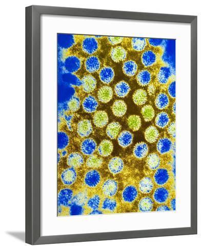 Coloured TEM of Rotaviruses--Framed Art Print