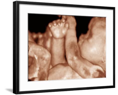 3-D Foetal Ultrasound--Framed Art Print