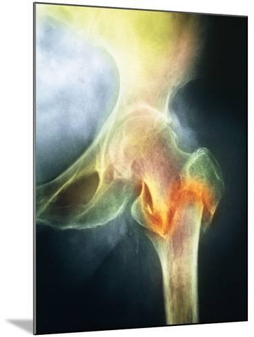 Coloured X-ray of Femur Fracture In Osteoporosis--Mounted Photographic Print