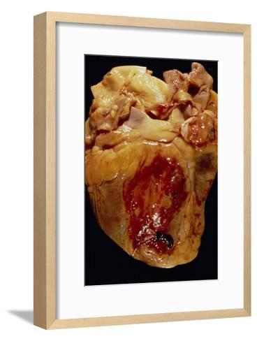 Ruptured Heart--Framed Art Print