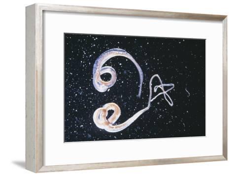Whipworm Parasites--Framed Art Print
