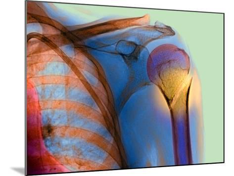 Broken Upper Arm Bone, X-ray-Du Cane Medical-Mounted Photographic Print