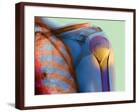 Broken Upper Arm Bone, X-ray-Du Cane Medical-Framed Art Print