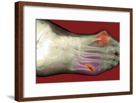 Fractured Foot-Du Cane Medical-Framed Art Print
