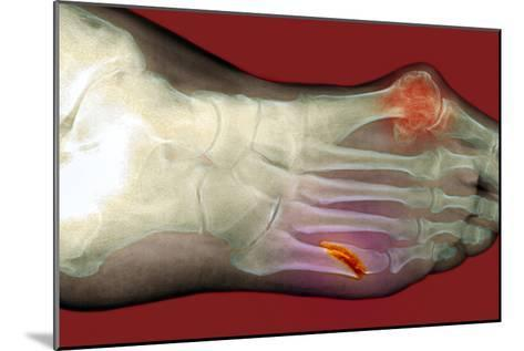 Fractured Foot-Du Cane Medical-Mounted Photographic Print