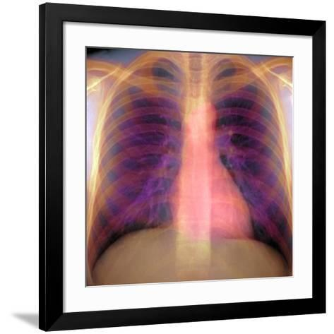 Lungs And Heart, X-ray-Du Cane Medical-Framed Art Print