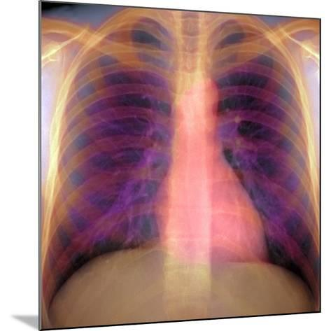 Lungs And Heart, X-ray-Du Cane Medical-Mounted Photographic Print
