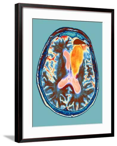 Brain Cancer Treatment, MRI Scan-Du Cane Medical-Framed Art Print