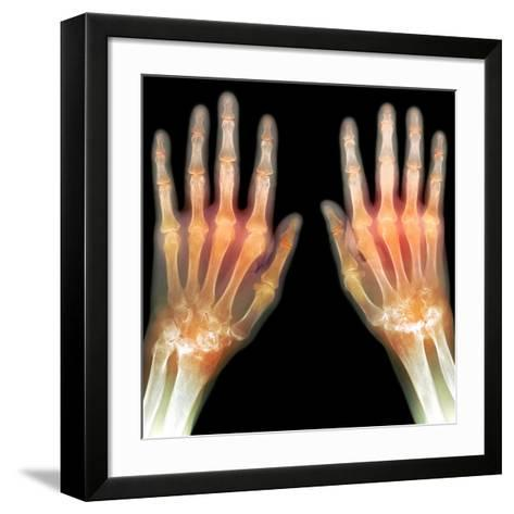 Rheumatoid Arthritis of the Hands, X-ray-Du Cane Medical-Framed Art Print