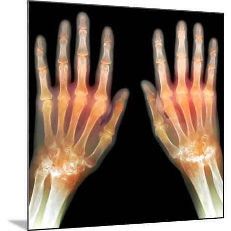 Rheumatoid Arthritis of the Hands, X-ray-Du Cane Medical-Mounted Photographic Print