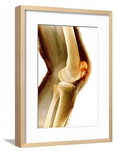 Fractured Kneecap, X-ray-Du Cane Medical-Framed Art Print