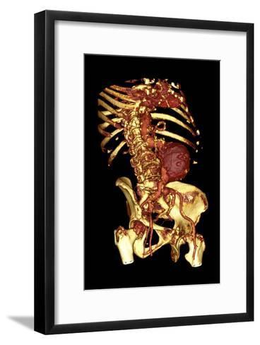 Abdominal Aortic Aneurysm, 3D CT Scan-Du Cane Medical-Framed Art Print
