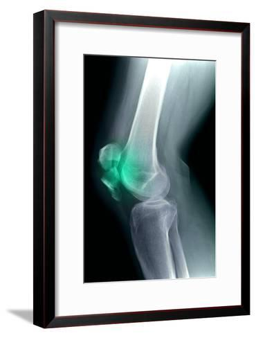 Kneecap Fracture, X-ray-Du Cane Medical-Framed Art Print