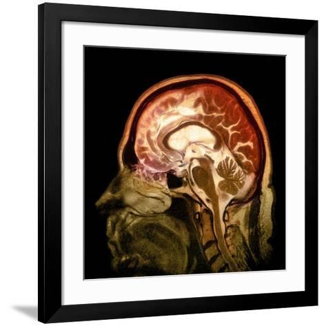 Alcoholic Dementia, MRI Scan-Du Cane Medical-Framed Art Print