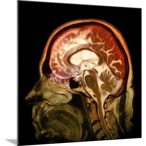Alcoholic Dementia, MRI Scan-Du Cane Medical-Mounted Photographic Print