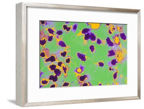 Coloured TEM of Activated Platelets (thrombocytes)-Dr. Gopal Murti-Framed Art Print