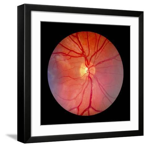 Normal Retina of Eye-Rory McClenaghan-Framed Art Print