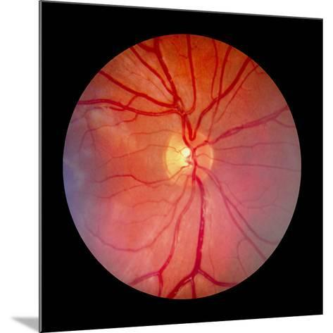 Normal Retina of Eye-Rory McClenaghan-Mounted Photographic Print