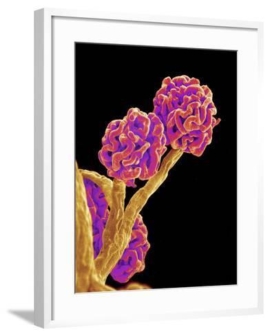 Kidney Glomeruli, SEM-Susumu Nishinaga-Framed Art Print