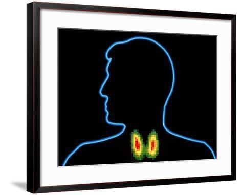 Coloured Gamma Scan of Normal Human Thyroid Gland-PASIEKA-Framed Art Print