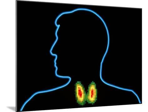 Coloured Gamma Scan of Normal Human Thyroid Gland-PASIEKA-Mounted Photographic Print