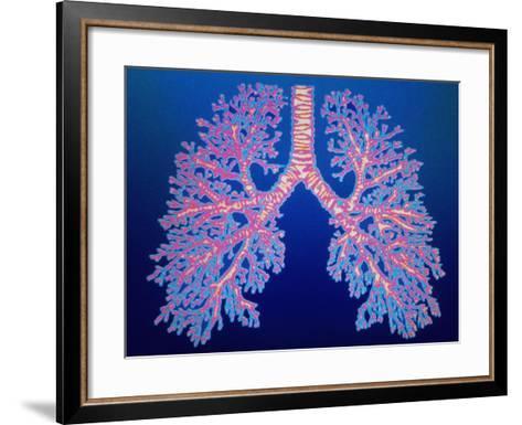 Bronchial Tree of Lungs-PASIEKA-Framed Art Print