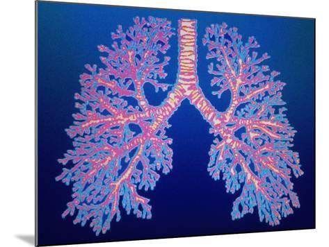 Bronchial Tree of Lungs-PASIEKA-Mounted Photographic Print