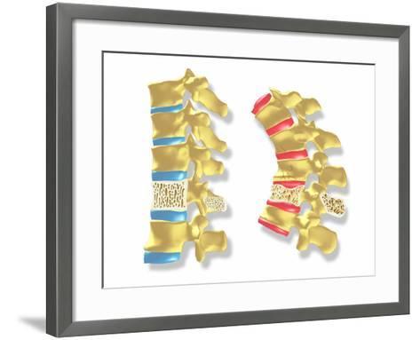 Osteoporosis-PASIEKA-Framed Art Print