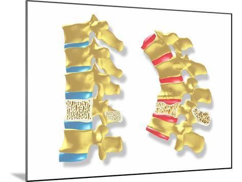 Osteoporosis-PASIEKA-Mounted Photographic Print